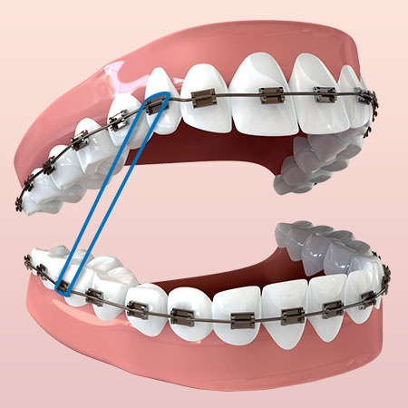 Image result for Rubber bands for braces